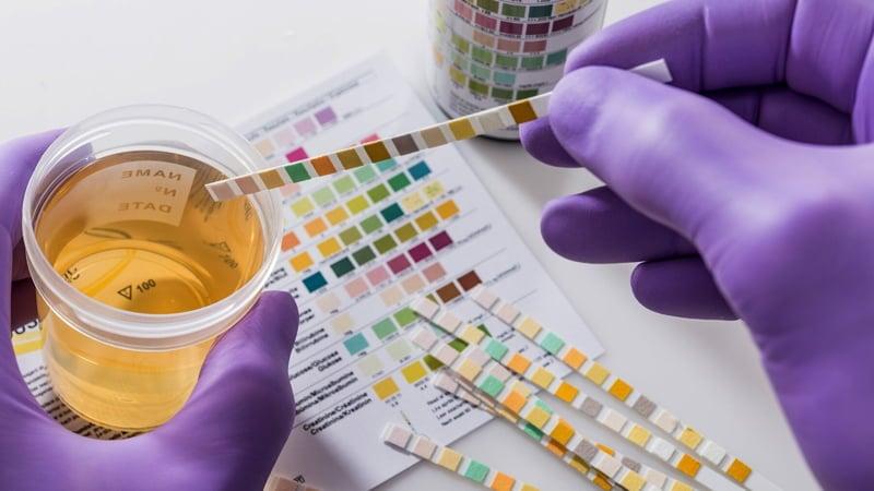 Hands Wearing Purple Gloves Conducting Drug Test Through Urine Sample